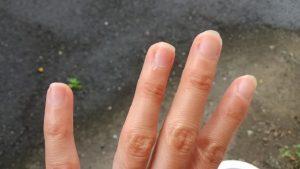 指にできたささくれのケアにはリップクリームがおすすめ!