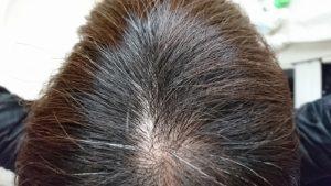 女性の薄毛対策には食事、シャンプー、ストレス解消が大切!