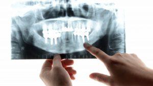 大人乳歯になる原因は先天性!もし抜けたらどうするの?